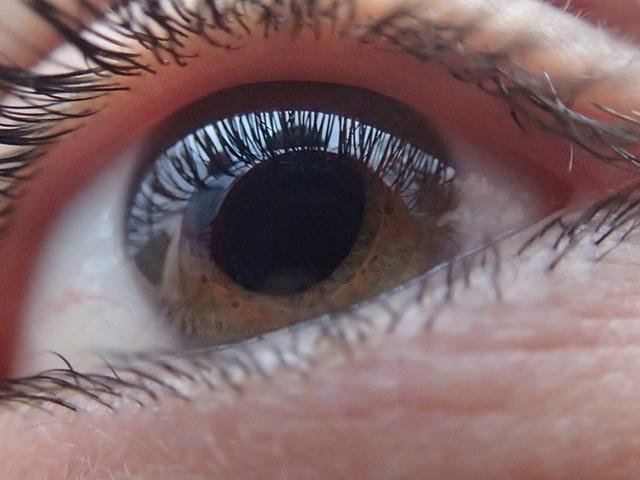 Benjamin-Eye-Care-Optical-Shop-Cataracts